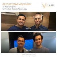 Hair Transplant in Ahmedabad - Musk Clinic